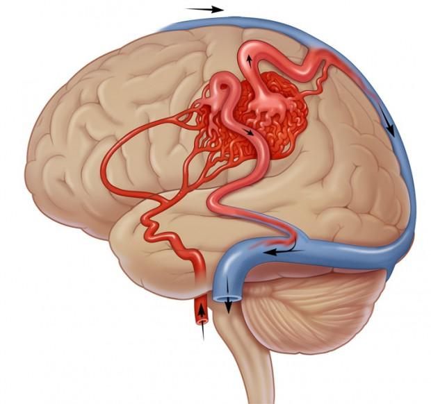 aneurysma in de hersenen