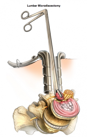 Microdiscectomie
