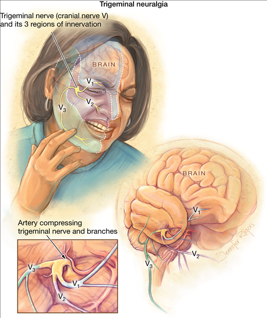 virus hersenen symptomen