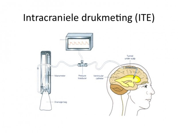 Intracraniële drukmeting