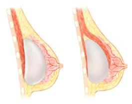 borstspieren vrouw