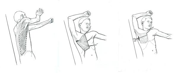 poland syndrome  ps