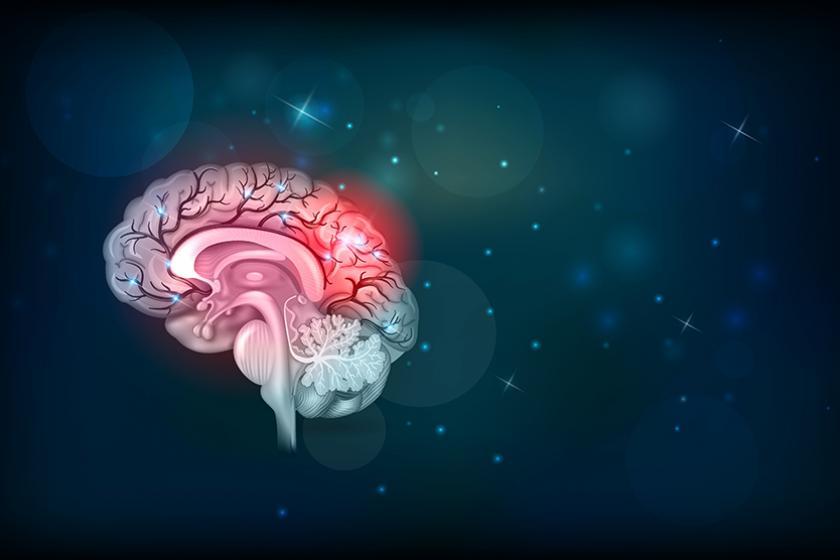 Acute beroerte: hoe herkennen en behandelen?